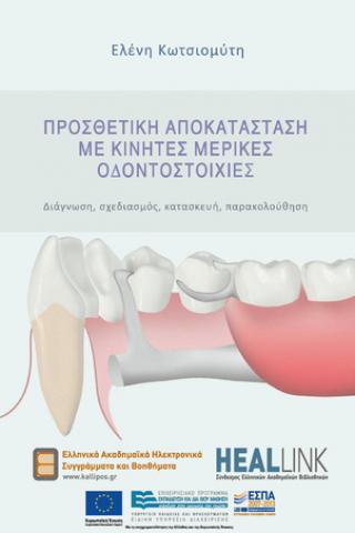 Προσθετική Αποκατάσταση με Κινητές Μερικές Οδοντοστοιχίες